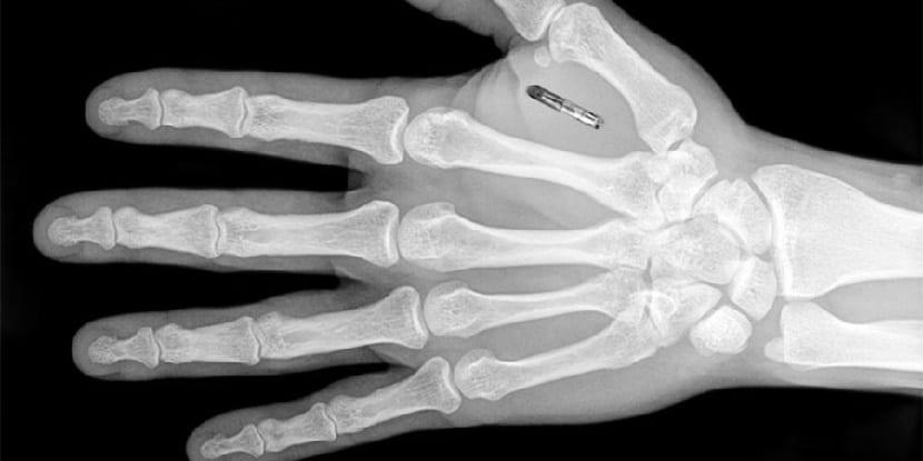Chip implantado en la mano